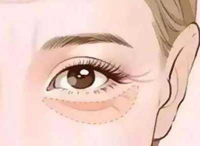 消除眼部皱纹 去除眼部皱纹的三个小妙招